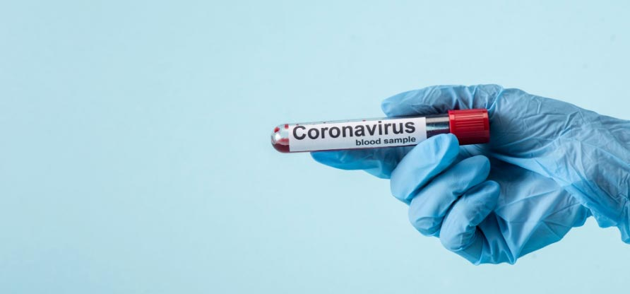 image of a hand in medical latex glove holding a vial of blood labeld Covid-19 sample